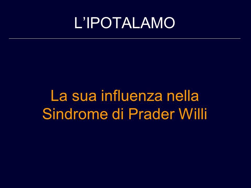La sua influenza nella Sindrome di Prader Willi