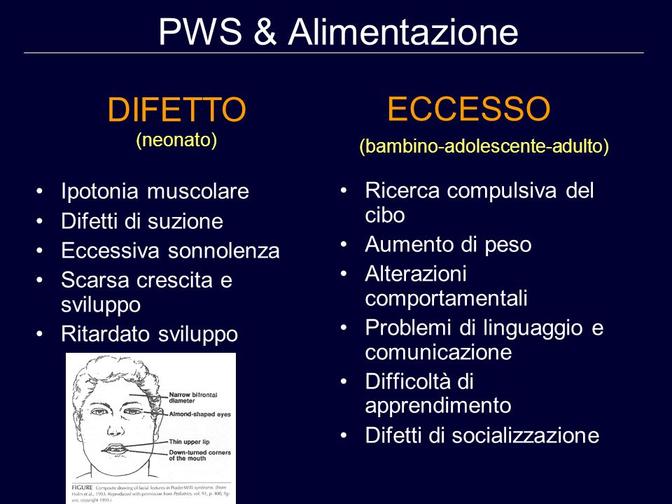 PWS & Alimentazione DIFETTO ECCESSO Ipotonia muscolare