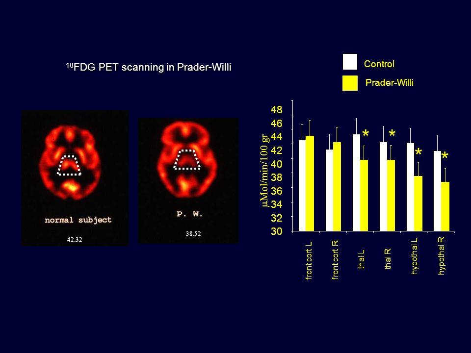 * * * * 18FDG PET scanning in Prader-Willi 48 46 44 42 mMol/min/100 gr