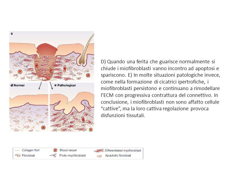 D) Quando una ferita che guarisce normalmente si chiude i miofibroblasti vanno incontro ad apoptosi e spariscono.