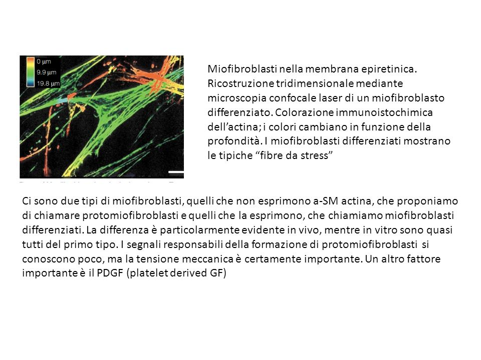 Miofibroblasti nella membrana epiretinica