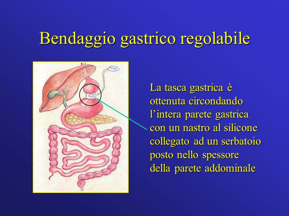 Bendaggio gastrico regolabile