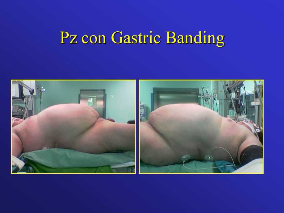 Pz con Gastric Banding