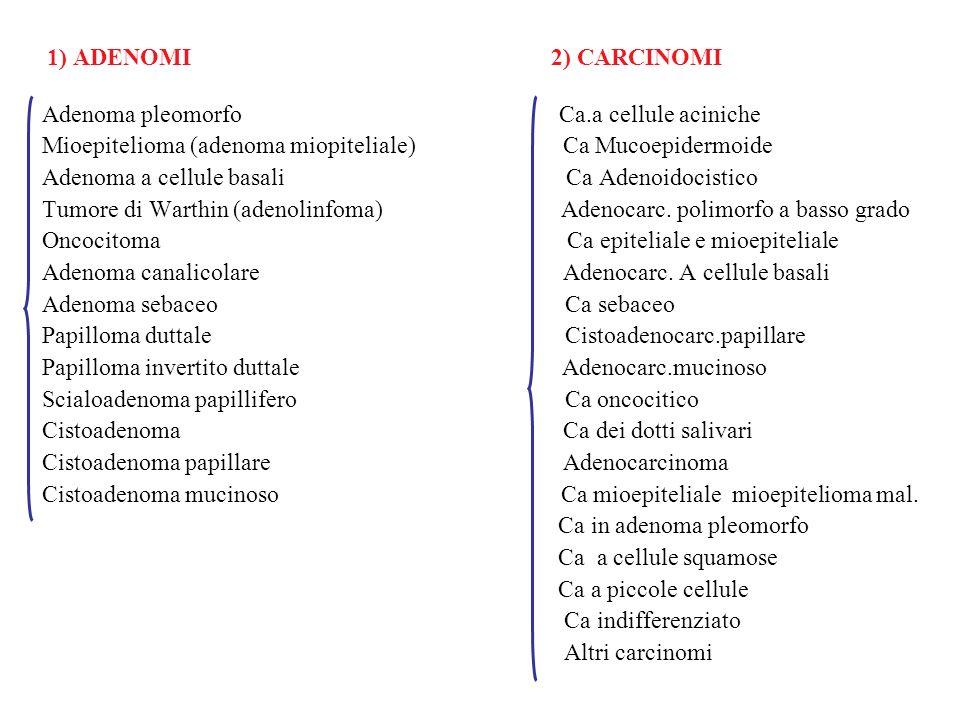 Adenoma pleomorfo Ca.a cellule aciniche