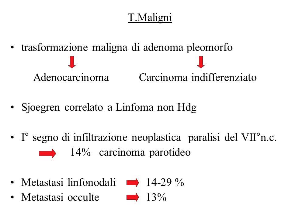 T.Maligni trasformazione maligna di adenoma pleomorfo. Adenocarcinoma Carcinoma indifferenziato.