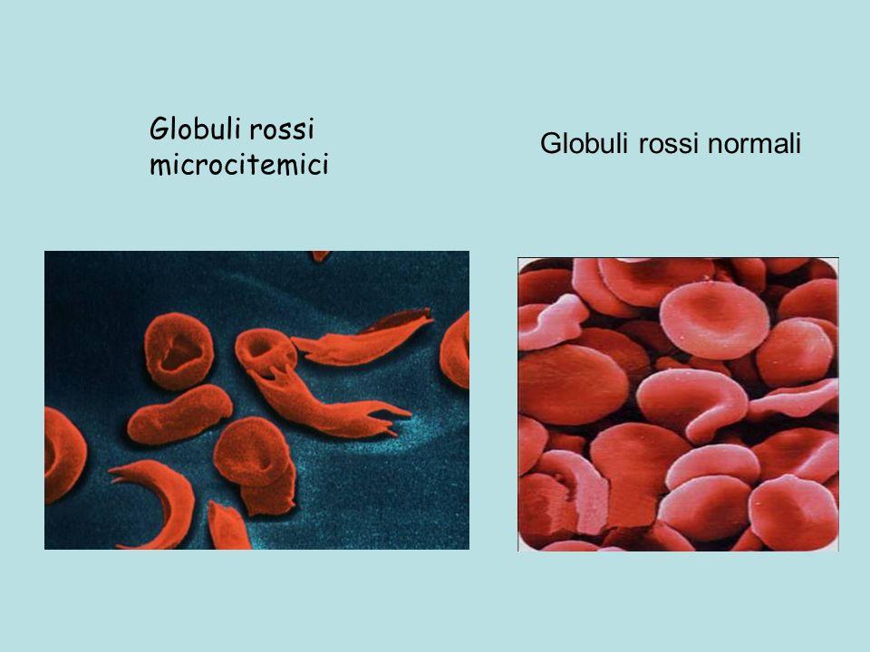 Globuli rossi microcitemici