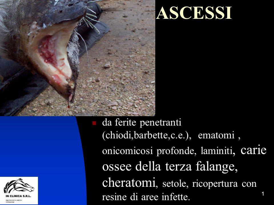 ASCESSI