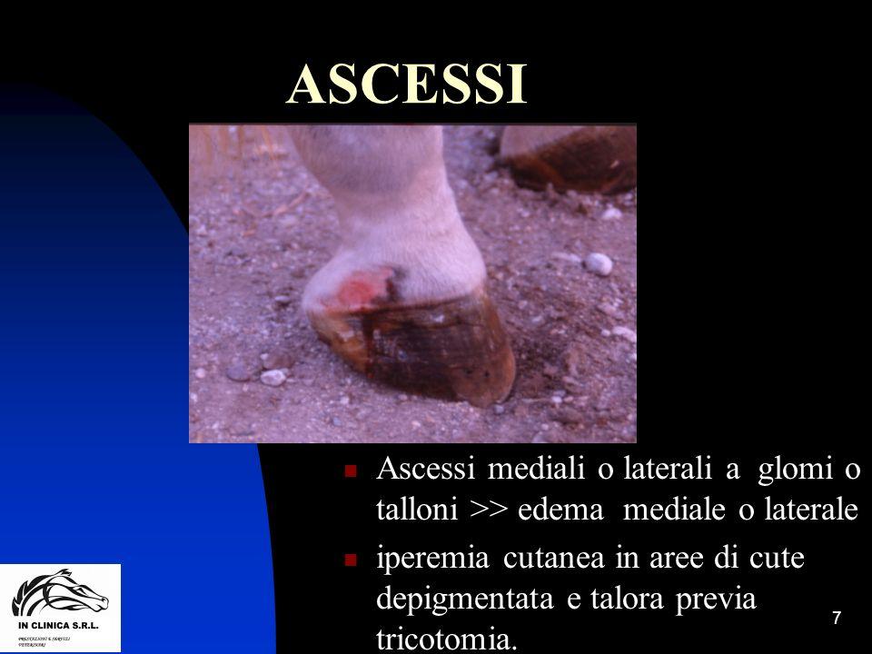 ASCESSI Ascessi mediali o laterali a glomi o talloni >> edema mediale o laterale.