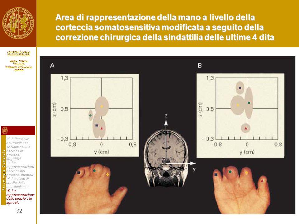 Area di rappresentazione della mano a livello della corteccia somatosensitiva modificata a seguito della correzione chirurgica della sindattilia delle ultime 4 dita