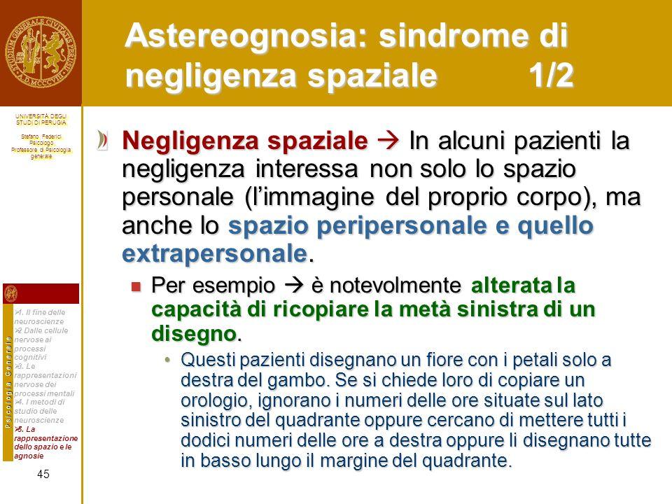 Astereognosia: sindrome di negligenza spaziale 1/2