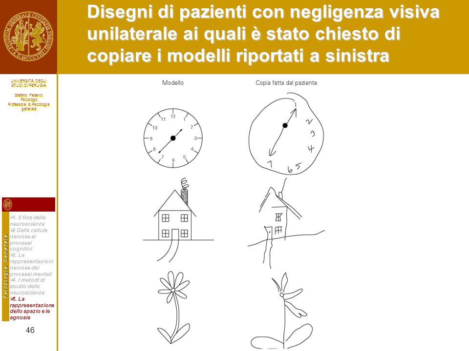 Disegni di pazienti con negligenza visiva unilaterale ai quali è stato chiesto di copiare i modelli riportati a sinistra
