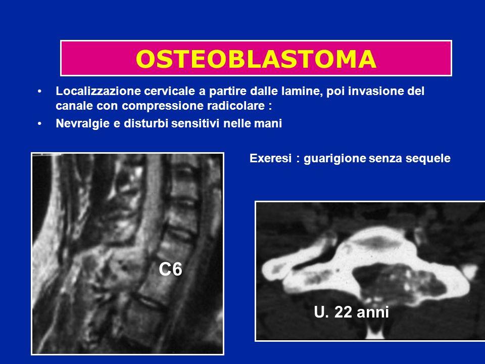 OSTEOBLASTOMA Localizzazione cervicale a partire dalle lamine, poi invasione del canale con compressione radicolare :