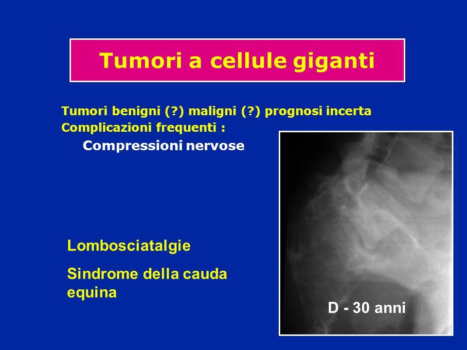 Tumori a cellule giganti