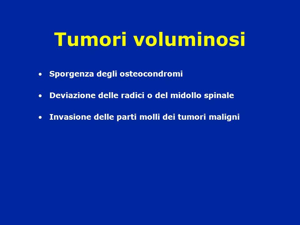 Tumori voluminosi Sporgenza degli osteocondromi
