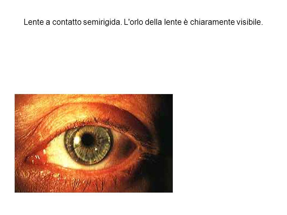 Lente a contatto semirigida. L orlo della lente è chiaramente visibile.