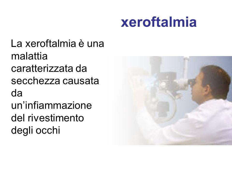 xeroftalmia La xeroftalmia è una malattia caratterizzata da secchezza causata da un'infiammazione del rivestimento degli occhi.