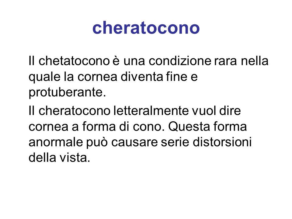 cheratocono Il chetatocono è una condizione rara nella quale la cornea diventa fine e protuberante.