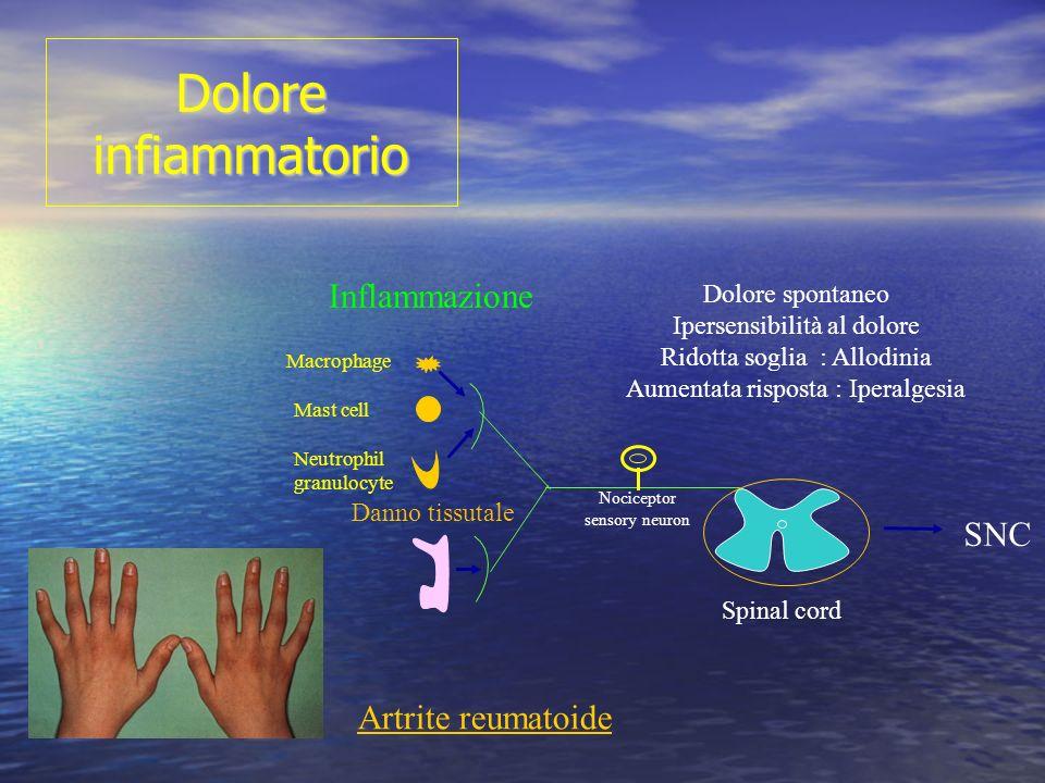 Dolore infiammatorio Inflammazione SNC Artrite reumatoide