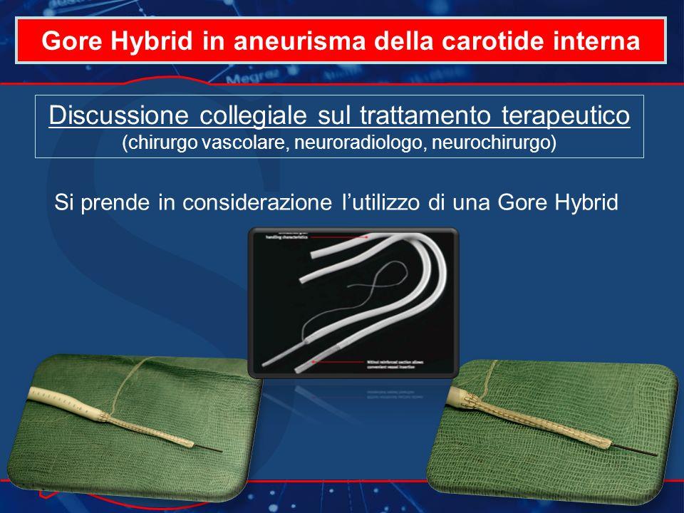 Gore Hybrid in aneurisma della carotide interna