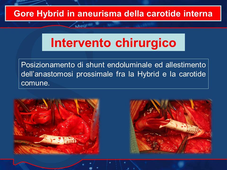 Gore Hybrid in aneurisma della carotide interna Intervento chirurgico