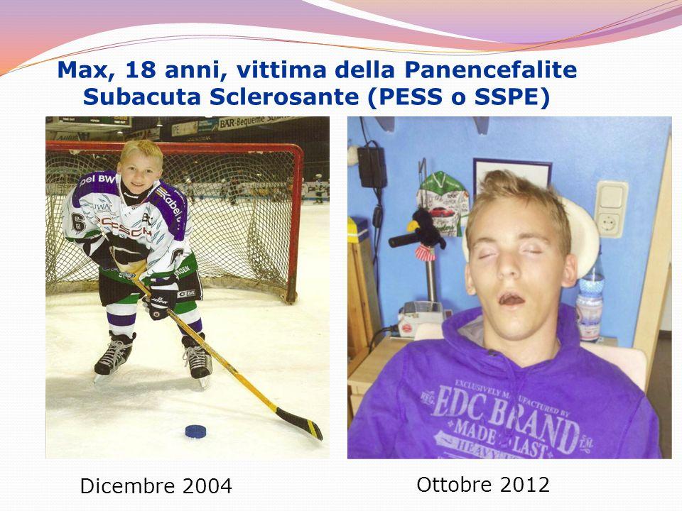 Max, 18 anni, vittima della Panencefalite Subacuta Sclerosante (PESS o SSPE)
