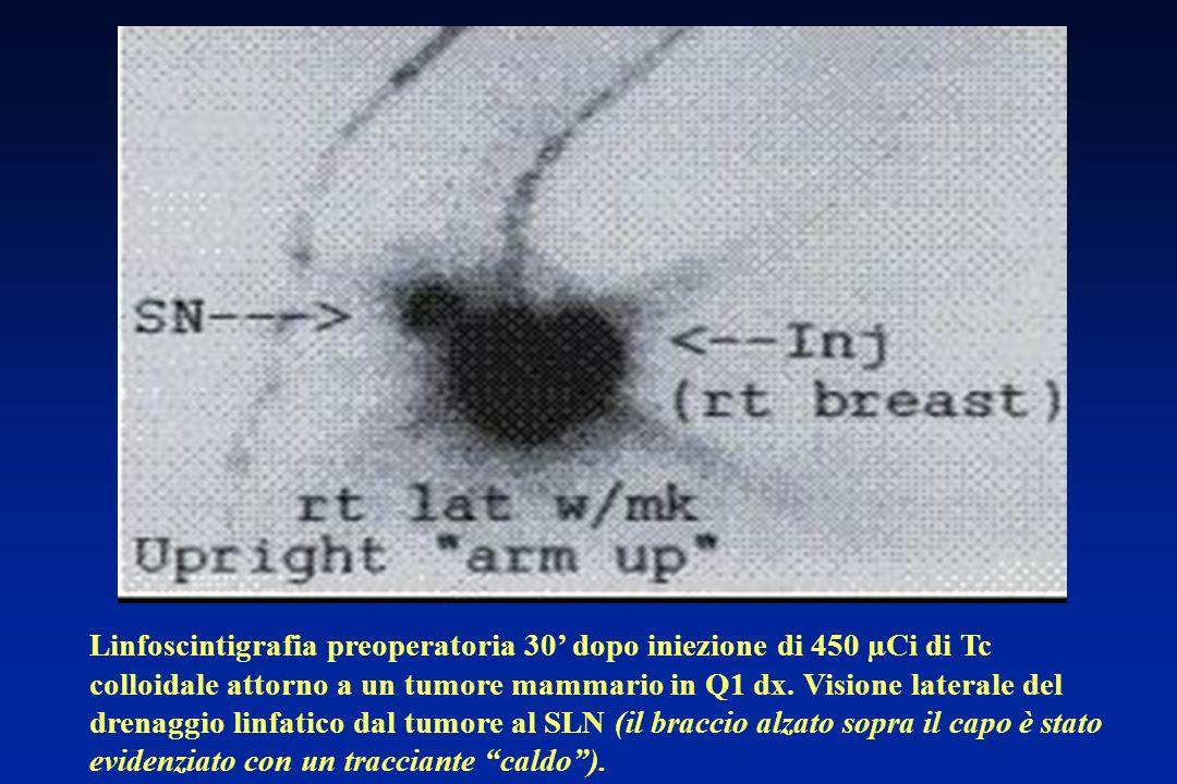 La metodica di localizzazione può essere la linfoscintigrafia mammaria.