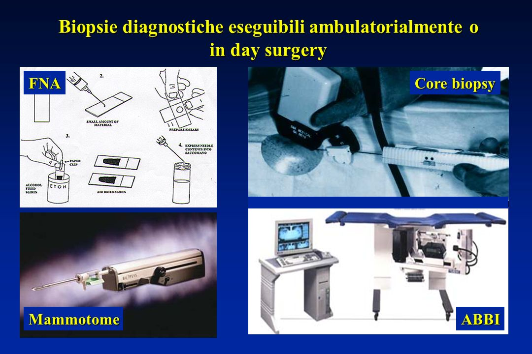 Biopsie diagnostiche eseguibili ambulatorialmente o in day surgery