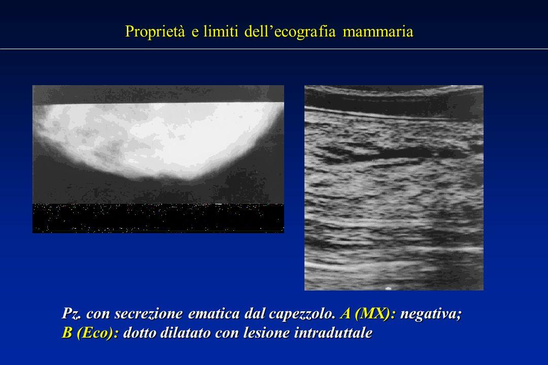 Proprietà e limiti dell'ecografia mammaria