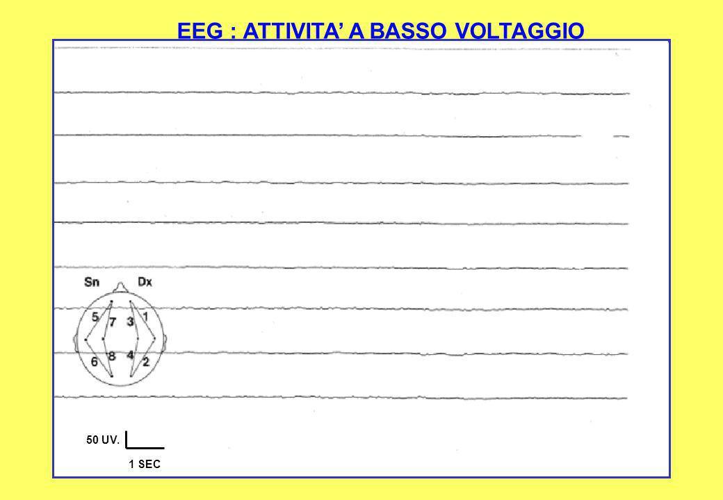EEG : ATTIVITA' A BASSO VOLTAGGIO