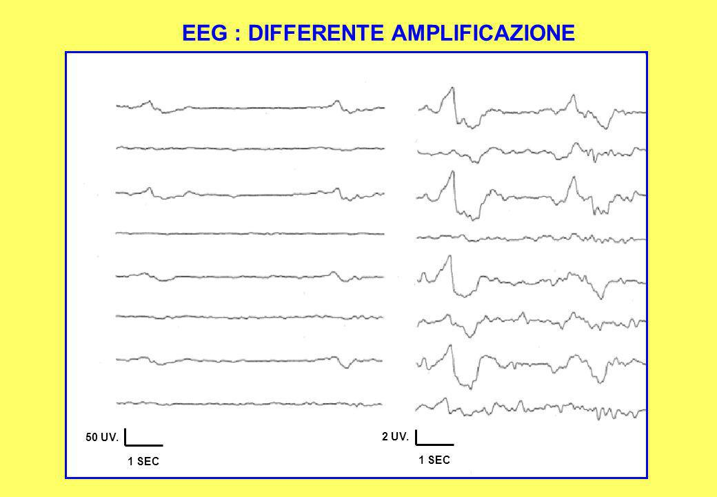 EEG : DIFFERENTE AMPLIFICAZIONE