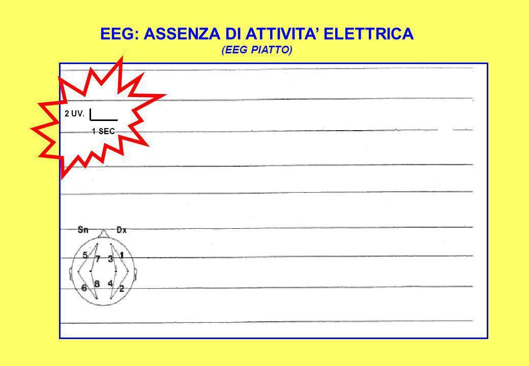 EEG: ASSENZA DI ATTIVITA' ELETTRICA
