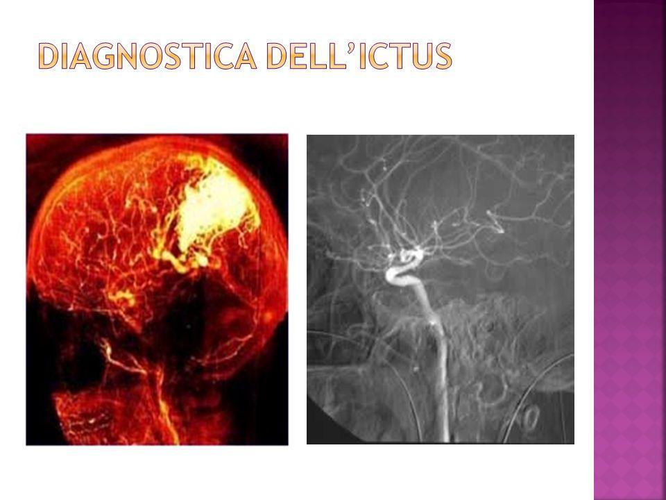 DIAGNOSTICA DELL'ICTUS