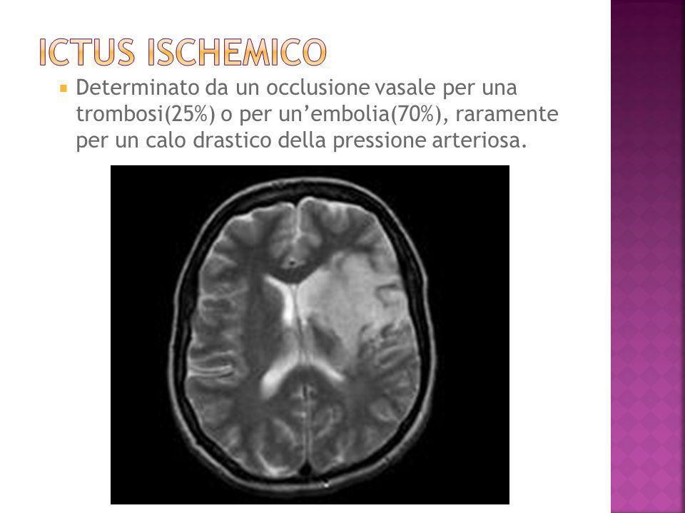 ICTUS ISCHEMICO