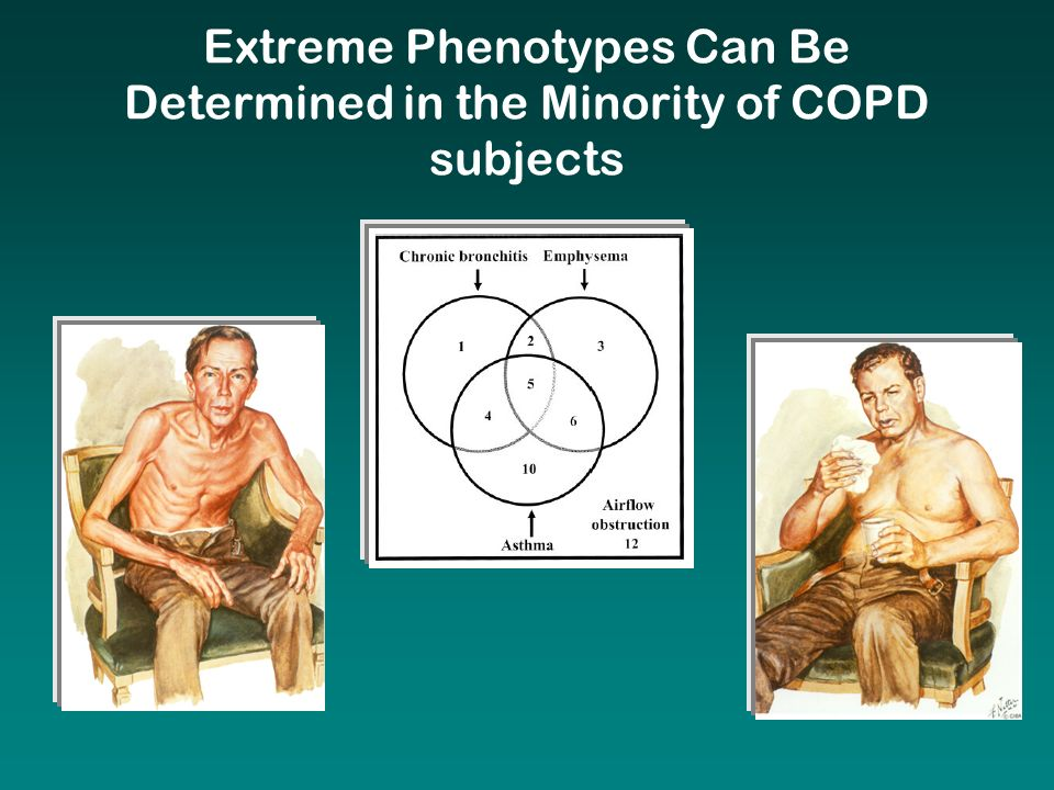 Extreme Phenotypes Can Be Determined in the Minority of COPD subjects