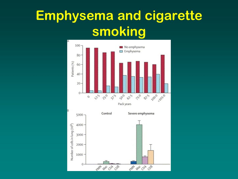 Emphysema and cigarette smoking