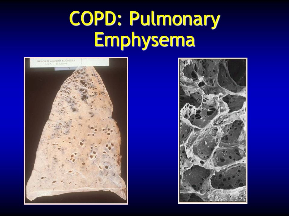 COPD: Pulmonary Emphysema