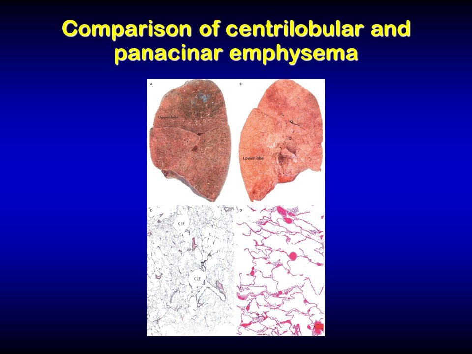 Comparison of centrilobular and panacinar emphysema
