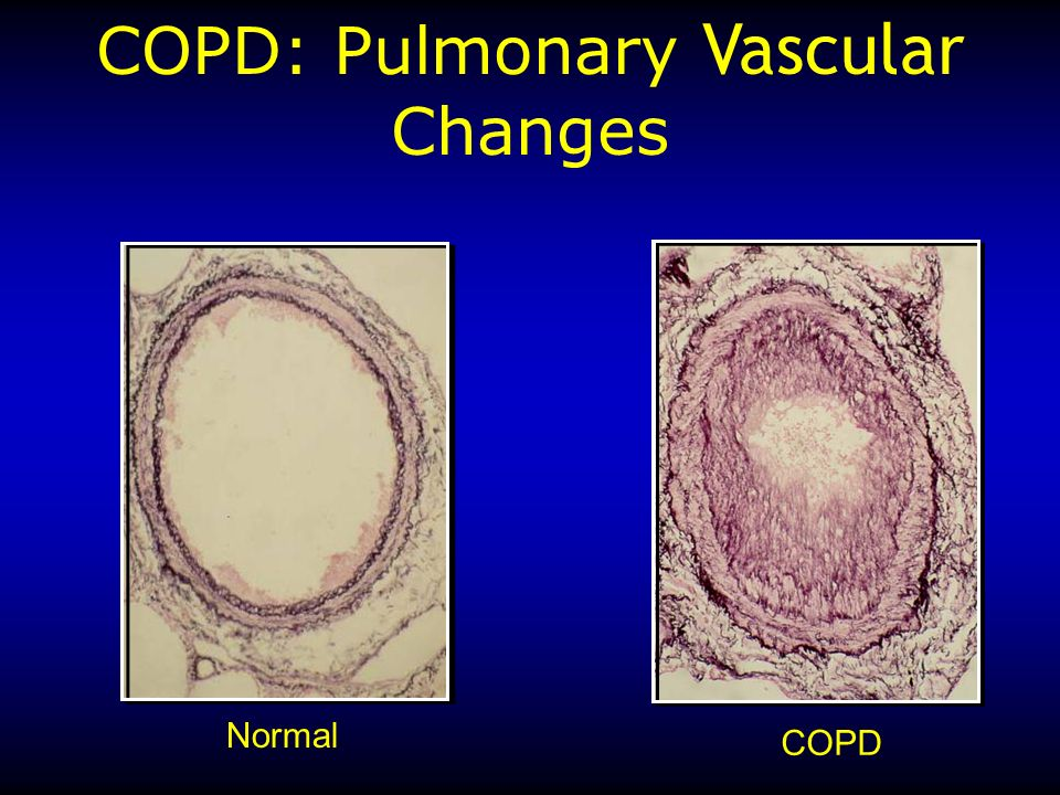 COPD: Pulmonary Vascular Changes