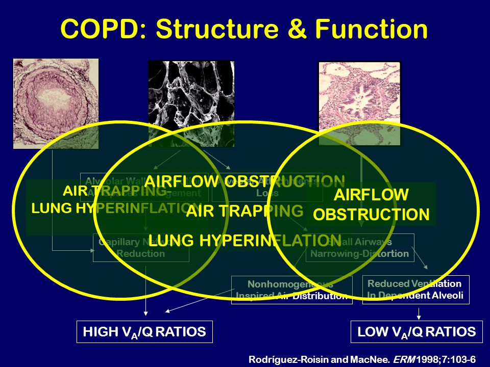 COPD: Structure & Function