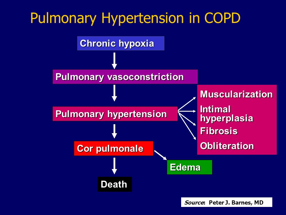 Pulmonary Hypertension in COPD
