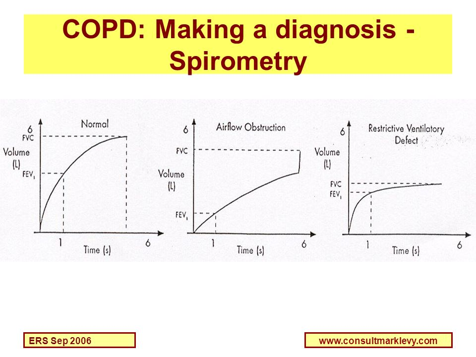 COPD: Making a diagnosis - Spirometry