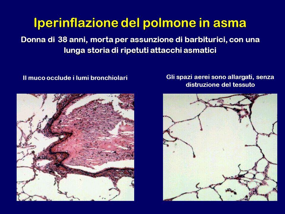 Iperinflazione del polmone in asma Donna di 38 anni, morta per assunzione di barbiturici, con una lunga storia di ripetuti attacchi asmatici