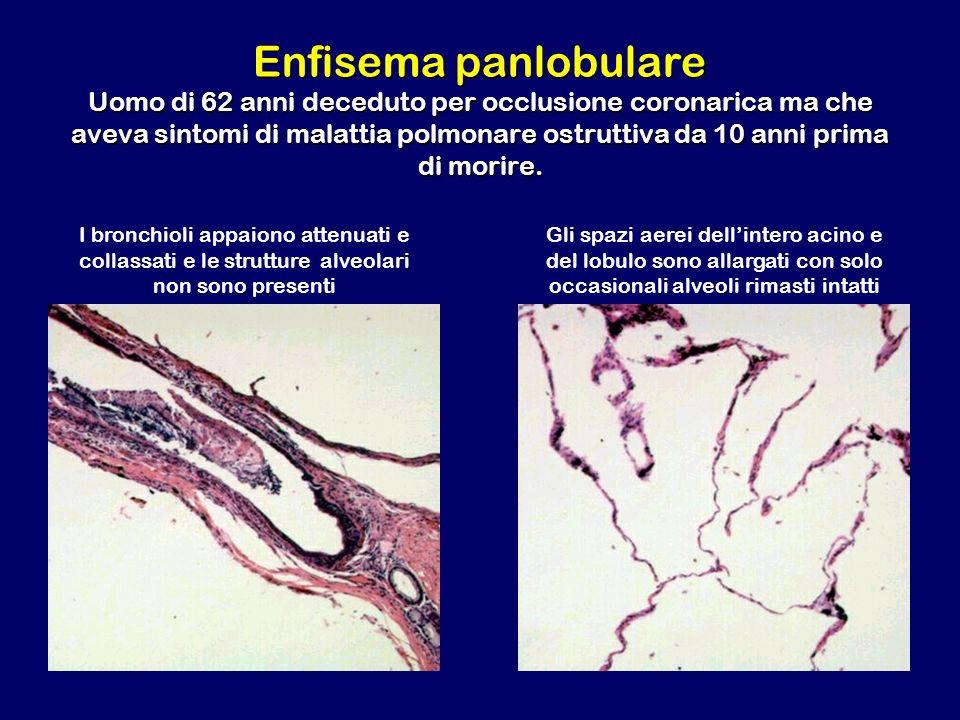 Enfisema panlobulare Uomo di 62 anni deceduto per occlusione coronarica ma che aveva sintomi di malattia polmonare ostruttiva da 10 anni prima di morire.