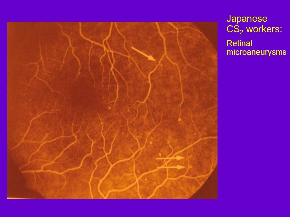 Japanese CS2 workers: Retinal microaneurysms
