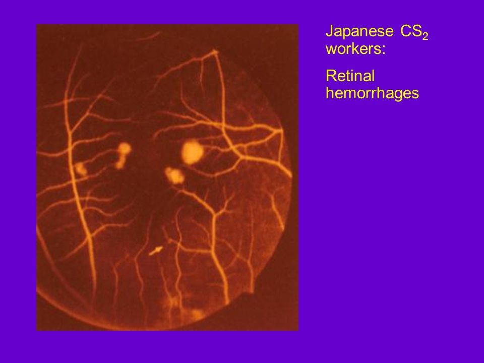 Japanese CS2 workers: Retinal hemorrhages