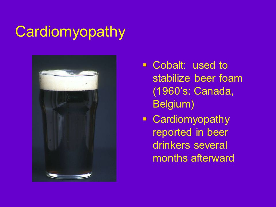 CardiomyopathyCobalt: used to stabilize beer foam (1960's: Canada, Belgium) Cardiomyopathy reported in beer drinkers several months afterward.