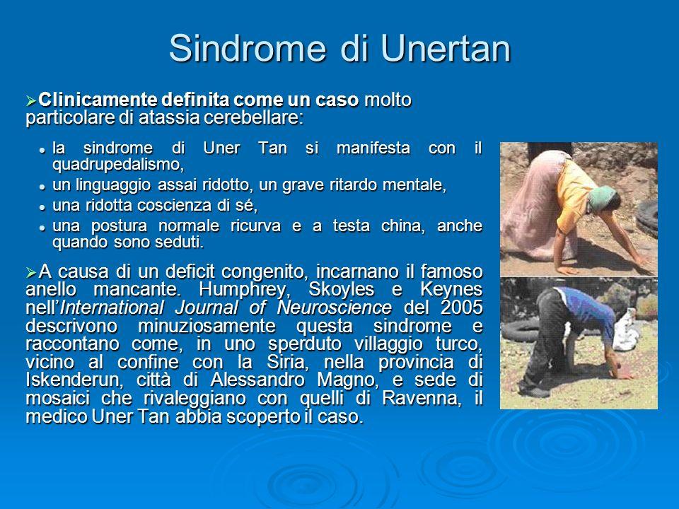 Sindrome di Unertan Clinicamente definita come un caso molto particolare di atassia cerebellare: