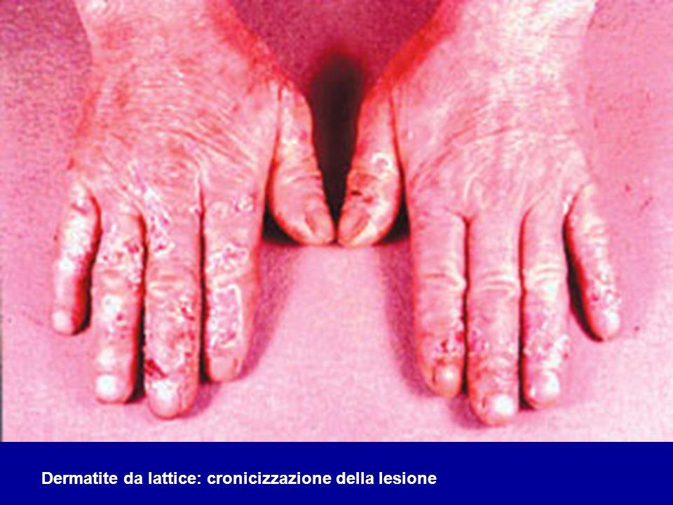 Dermatite da lattice: cronicizzazione della lesione