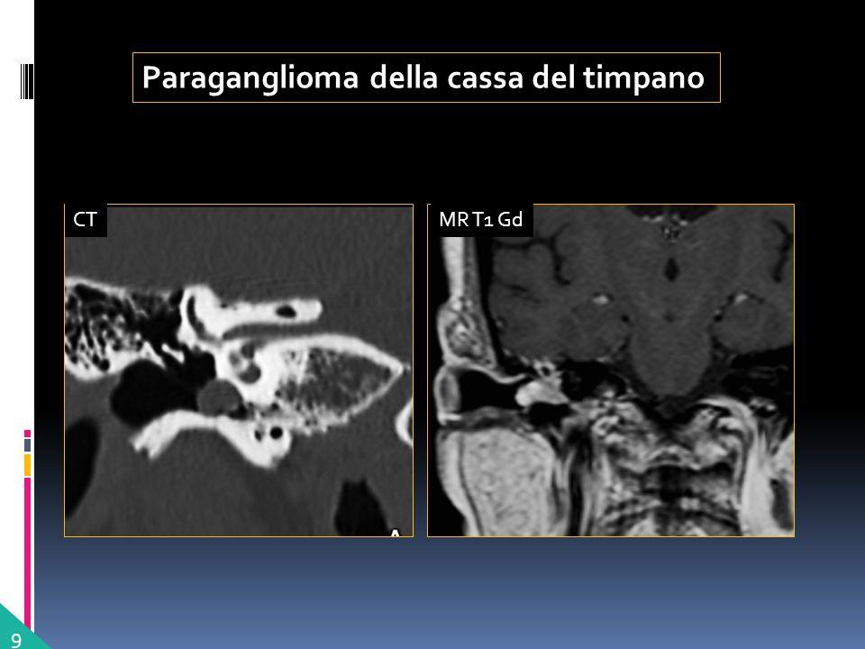Paraganglioma della cassa del timpano