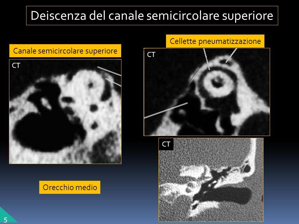 Deiscenza del canale semicircolare superiore